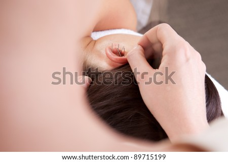 Detail view of professional acupuncturist placing needle in ear of patient - stock photo