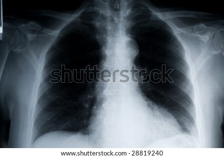 detailed chest x-ray, landscape orientated