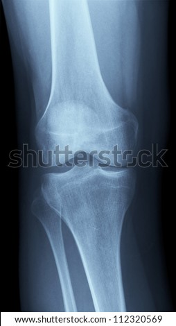 Detailed X-ray of a healthy human right knee. Image created using modern digital radiography - stock photo