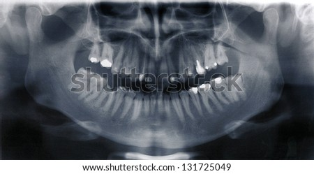 Details of black white X-ray scan of human teeth - stock photo