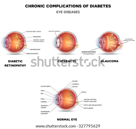 What is glaucoma essay