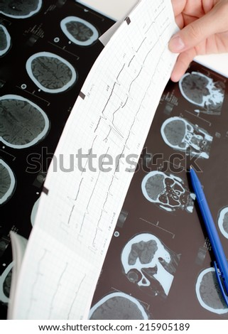 Diagnostic data in the hands of the doctor. Making a decision  - stock photo