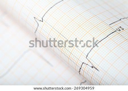 Diagnostic ECG chart concept - stock photo