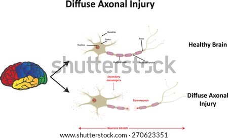 Diffuse Axonal Injury  - stock photo