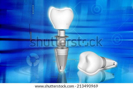 Digital illustration Dental implant in colour background