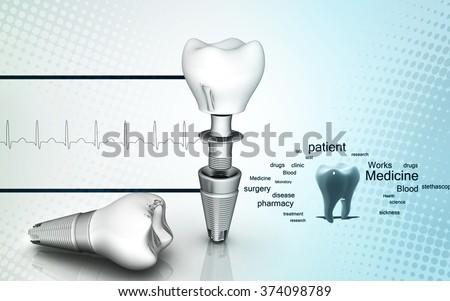 Digital illustration of  Dental implant in colour  background - stock photo