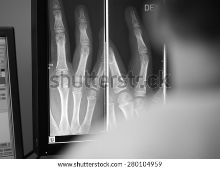Digital x-ray of a patient hand - stock photo