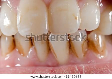 dirty aged front teeth macro (upper row sharp) - stock photo