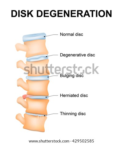 Disc degeneration it's the normal wear and tear process of aging spine. intervertebral discs lose their flexibility, elasticity, and shock-absorbing characteristics. - stock photo