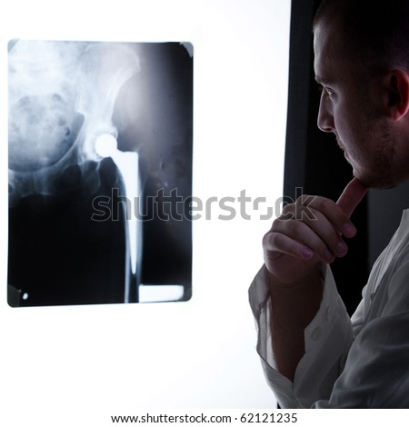 Doctor analyzes x-ray image - stock photo