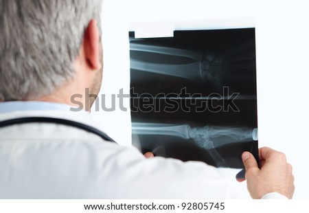 Doctor checking a wrist x ray isolated on white