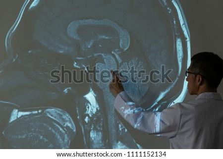 Doctor Demonstrating Mri Human Brain Anatomy Stock Photo Royalty