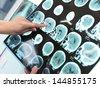 Doctor examines the patient tomogram - stock photo