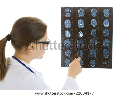 doctor examining a brain cat scan