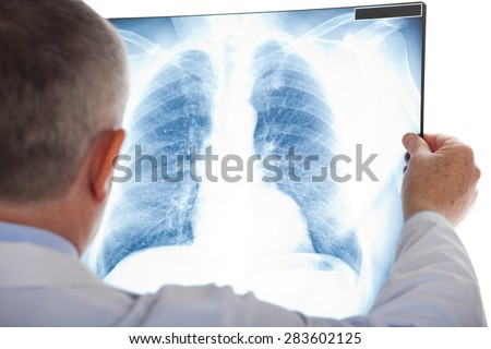 Doctor examining a lung radiography - stock photo
