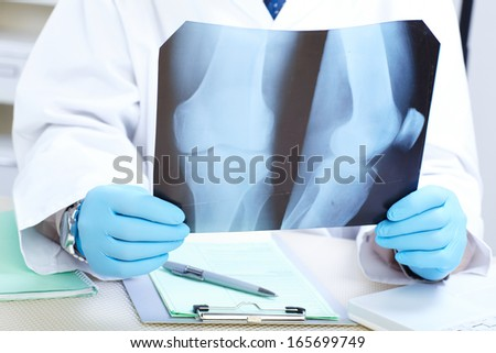 Doctor examining an x-ray. Medicine and health-care - stock photo