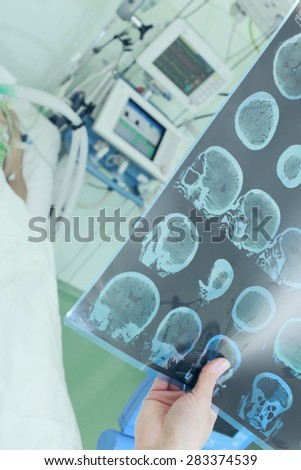 Doctor examining CT scan of patient in ICU ward - stock photo