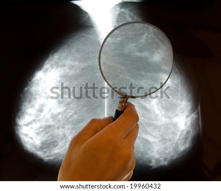 doctor examining mammography x-ray pictures - stock photo