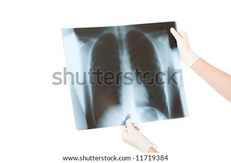 Doctor examining x-ray scans isolated on a white background