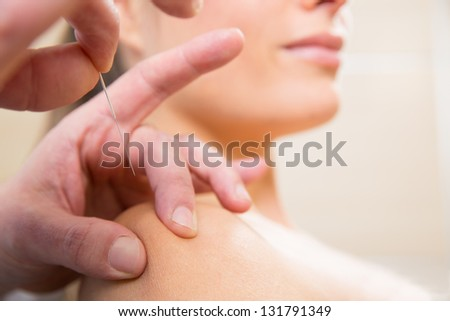 Doctor hands acupuncture needle pricking on woman patient closeup - stock photo