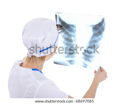 Doctor holding an x-ray edges. Isolated on white background - stock photo