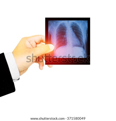 Doctor holding x-ray film for a medical diagnosis. - stock photo