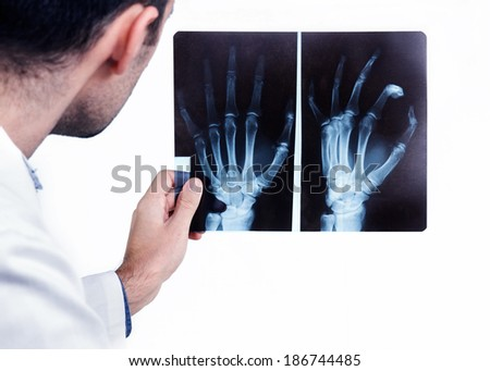 Doctor looking at the x-ray picture of hand.