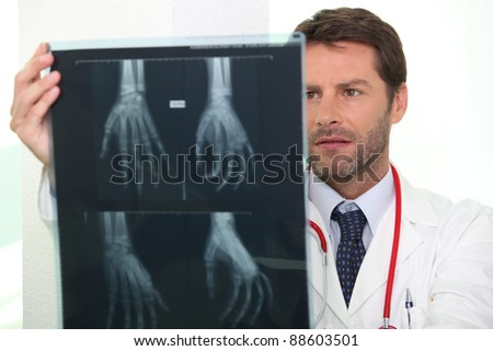Doctor looking at X-ray - stock photo