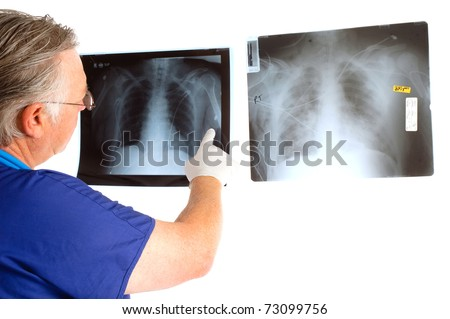 Doctor or surgeon analyzing a pair of x-rays