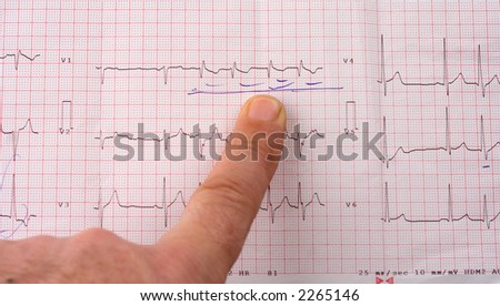 Doctor pointing with his finger at EKG results