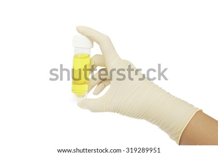 doctor's hand in white gloves holding a transparent container with the analysis of urine on a white background