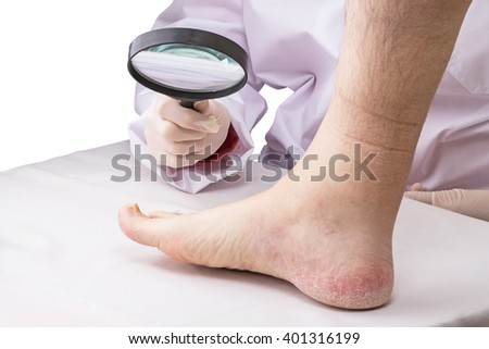 Doctor with magnifying glass and a sick leg isolated on a white background