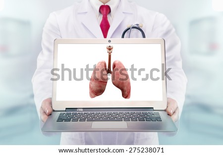 Doctor with stethoscope in a hospital. lungs on the laptop monitor. High resolution.  - stock photo