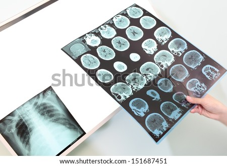 Doctor with tomography and X-ray  - stock photo