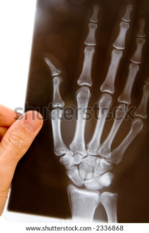 Doctor with x-ray of hand - stock photo
