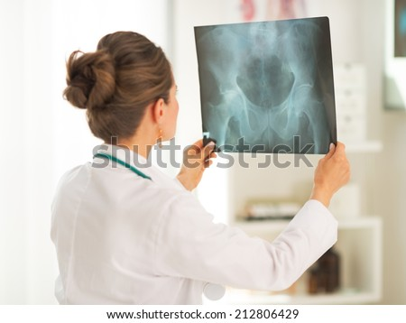 Doctor woman looking on fluorography. rear view - stock photo