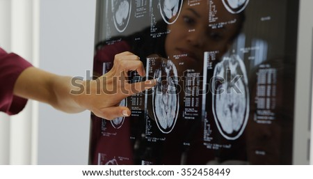 Doctors reviewing brain x-rays - stock photo