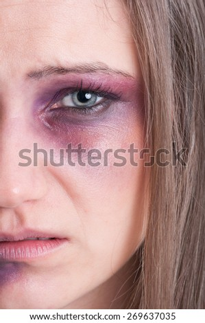 Domestic violence concept with half face of  an injured, beaten and bruised woman victim - stock photo