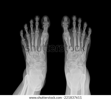 Double Foot X-ray - stock photo