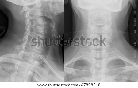 Double neck xray - stock photo