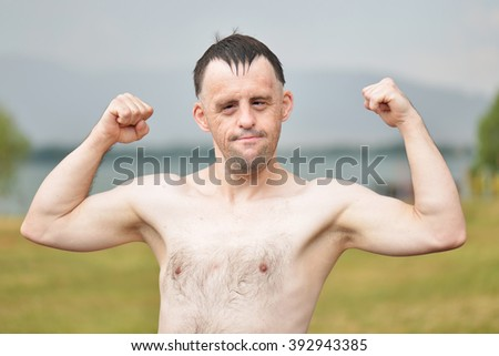 down syndrome man flexing his biceps