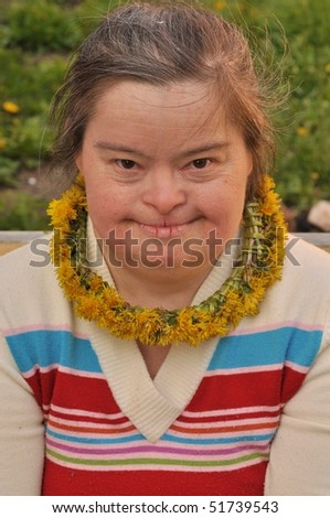 down syndrome woman - stock photo
