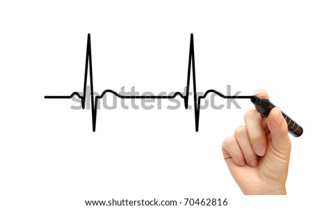 Drawing ECG - stock photo