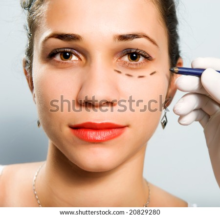 Drawing lines on a Caucasian girl's face as marks for facial plastic surgery - stock photo