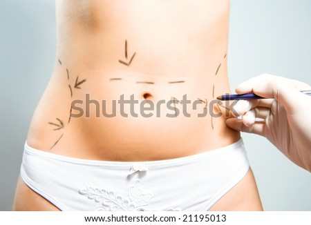 Drawing lines on a Caucasian lady's abdomen as marks for abdominal cellulite correction cosmetic surgery - stock photo