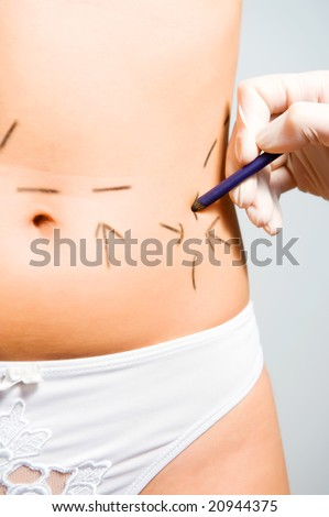 Drawing lines on a Caucasian woman's abdomen as marks for abdominal cellulite cosmetic correction surgery - stock photo