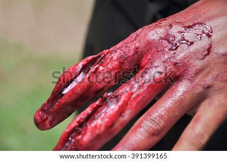 wound stock images royalty free images vectors shutterstock