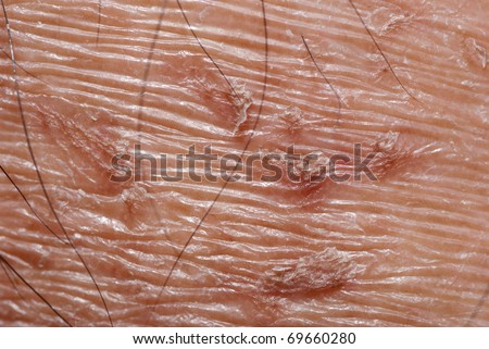 dry skin texture detail background - stock photo