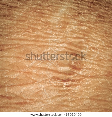 dry skin texture detail of human - stock photo
