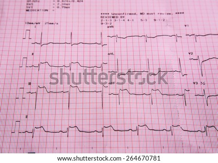 ECG ,A Scanned image of an electrocardiograph.  - stock photo